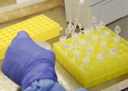 MS tem mais 947 casos positivos de coronavírus e chega a 558 óbitos